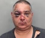 José Varela luego de golpiza en Miami Foto: Policía Miami
