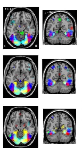 Imágenes de resonancia funcional del cerebro de personas analfabetas y alfabetizadas en edad adulta y en edad infantil, de arriba abajo, durante los experimentos- SCIENCE / AAAS