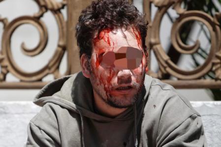 """Joven sangrando tras represión policial en Grecia este 11 de mayo de 2001. Foto tomada de """"El Periscopio"""""""